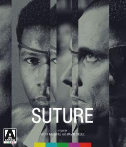 Suture_AV056